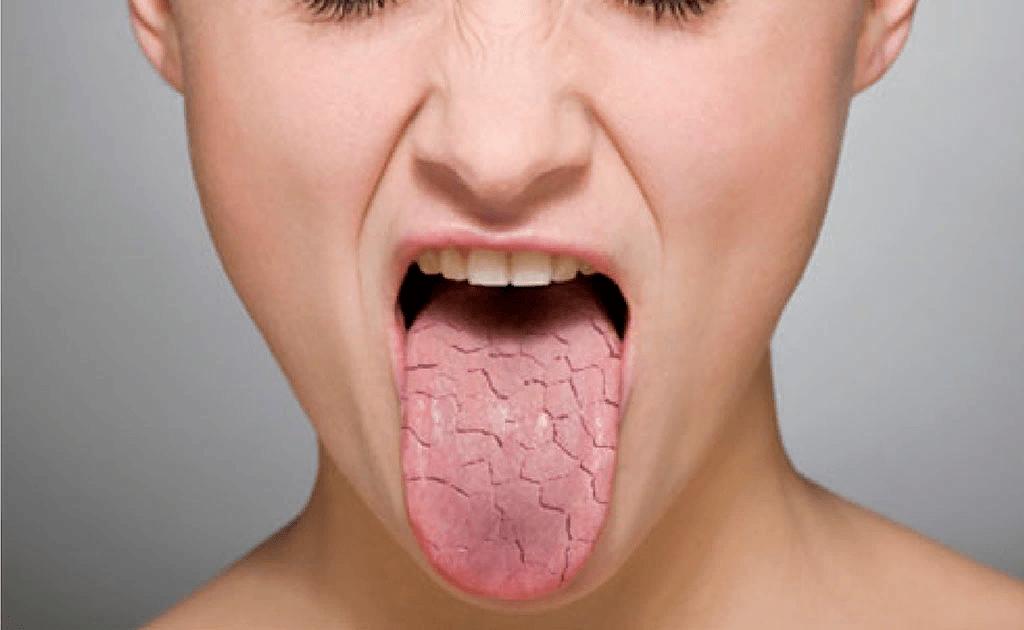 Otoimmün Hastalık Sjögren Sendromu