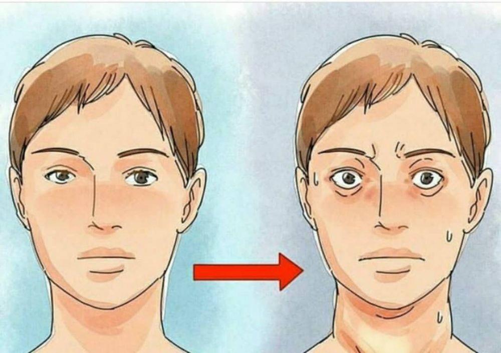 Otoimmün Hastalık Graves Hastalığı