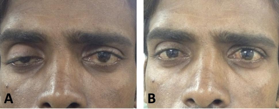 Otoimmün Hastalık Myasthenia Gravis