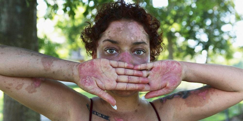 Otoimmün Hastalık Lupus