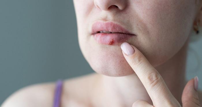 Epilasyon Ve Herpes Simplex Uçuk Virüsü