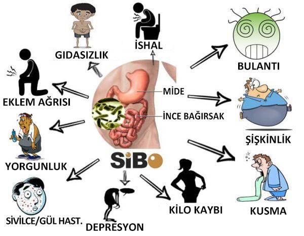 İnce Bağırsakta Aşırı Bakteri Çoğalması (Sibo)