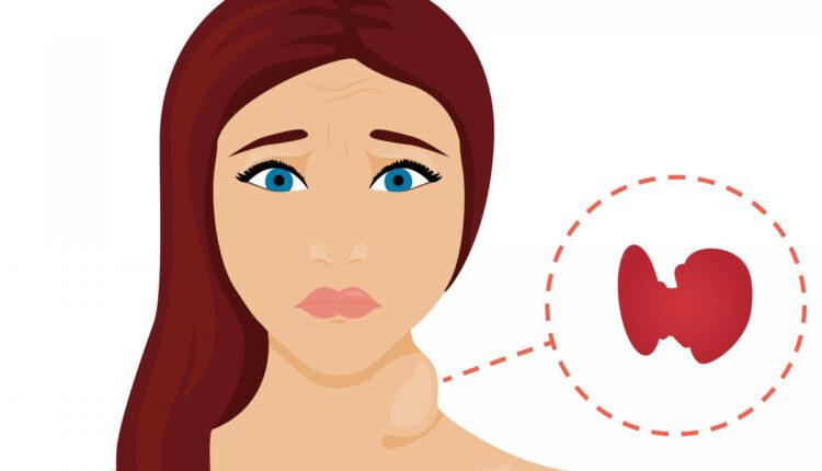 hipertiroid nedir