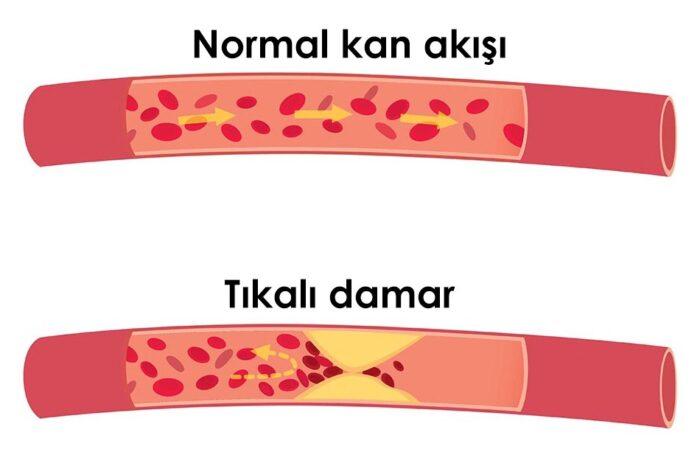 Kolesterol Neden Yukselir