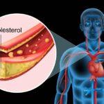 kolesterol nedir kolesterol nasıl düşürülür