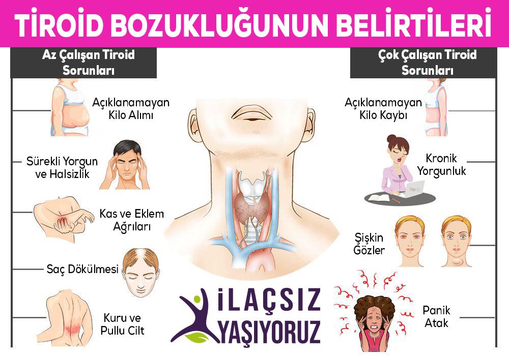 Tiroid Hastalığı Tiroid Bozukluğunun Belirtileri