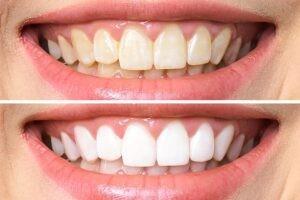 Diş Beyazlatmak Zararlı Mıdır?