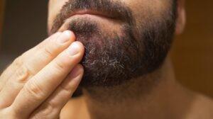 Seboreik Dermatit Nedir? Nasıl Oluşur?