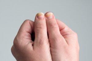 Tırnakta Beyaz Lekeler (Leukonychia) Neden Oluşur?