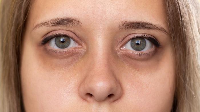 Genetik Göz Altı Morlukları Evde Nasıl Geçer? Genetik Göz Altı Morluğu Geçer Mi?