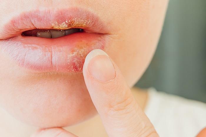 Herpes (Uçuk) Nedenleri Ve Tedavisi, Herpes Nasıl Geçer?