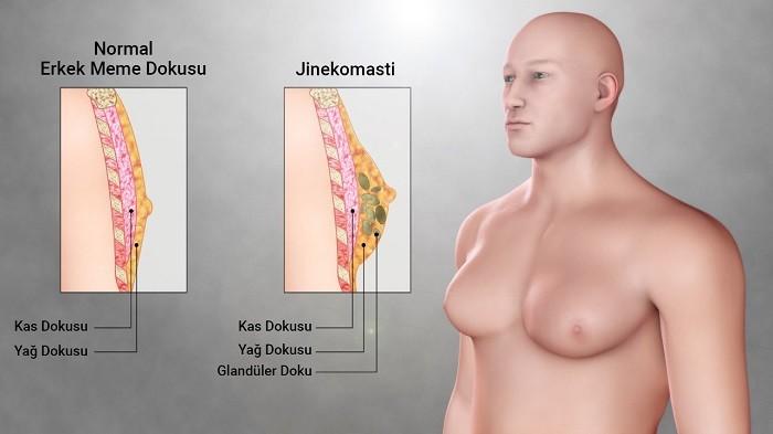 Jinekomasti Olduğu Nasıl Anlaşılır? Nasıl Tedavi Edilir?