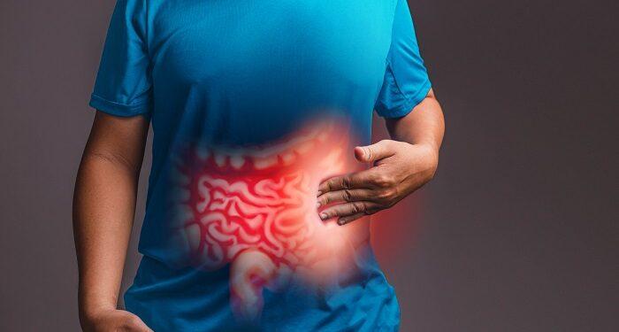 Sağlıksız Bağırsakların Belirtileri Nelerdir? Tedavisi Nasıl Yapılır?