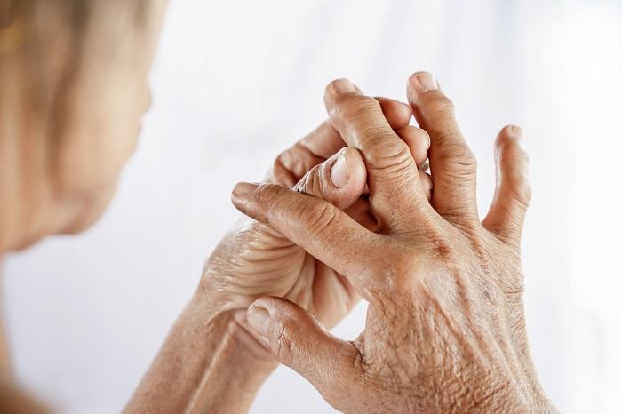Artrit İçin Faydalı Uçucu Yağlar Hangileridir? Artrit Tedavisinde Uçucu Yağlar Nasıl Kullanılır?