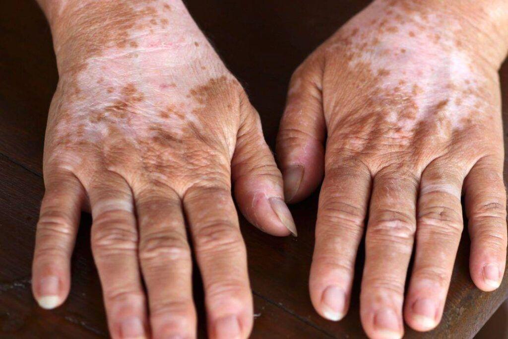 Otoimmün Hastalık Addison Hastalığı
