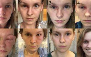 Candida BelirtileriSinüs Enfeksiyonları