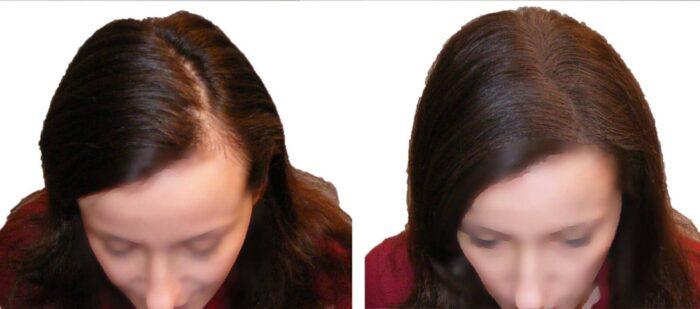 Saçları Kalınlaştırmak
