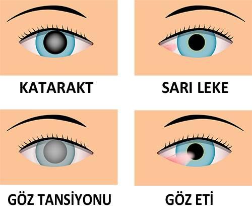Göz-Hastalıkları-Katarakt-Sarı-Leke-Göz-Tansiyonu-Göz-Eti
